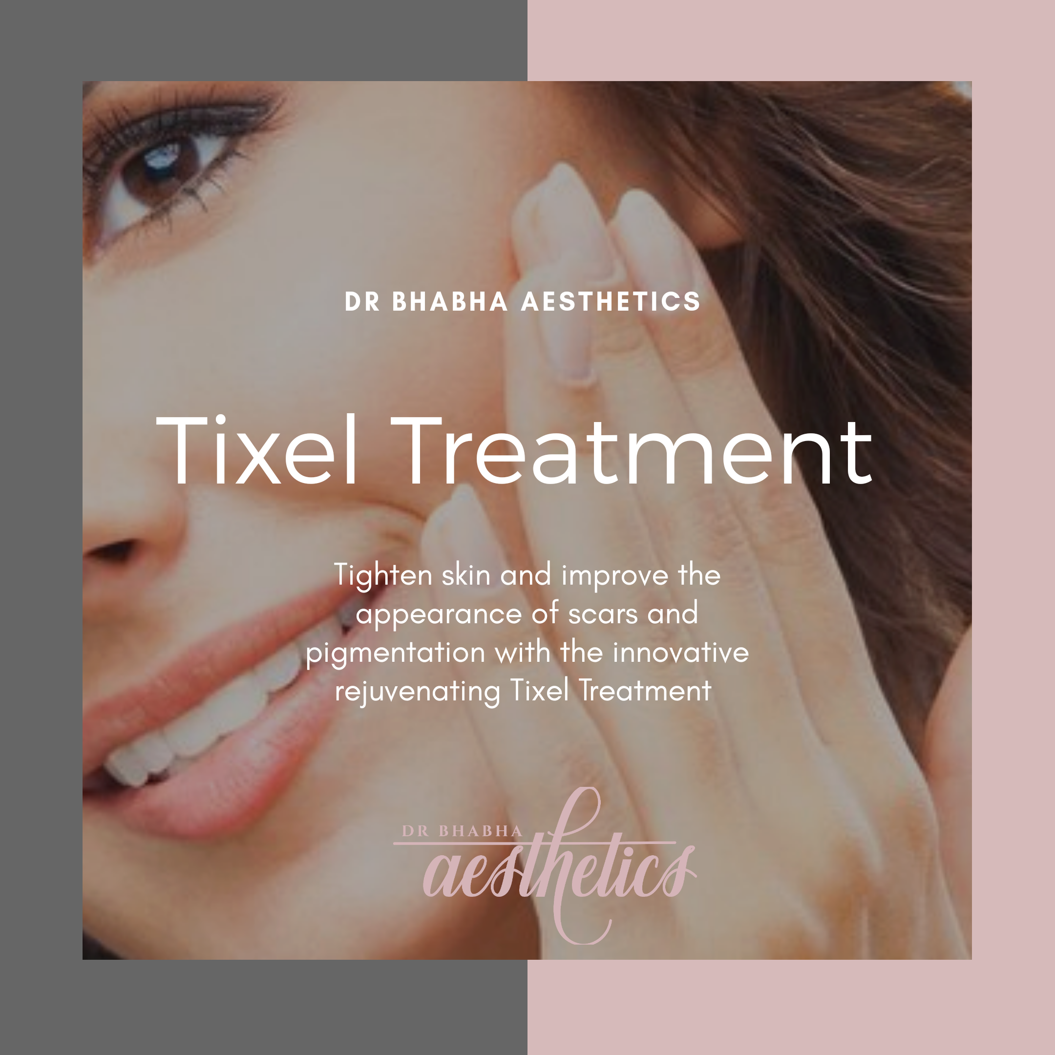 tixel treatment