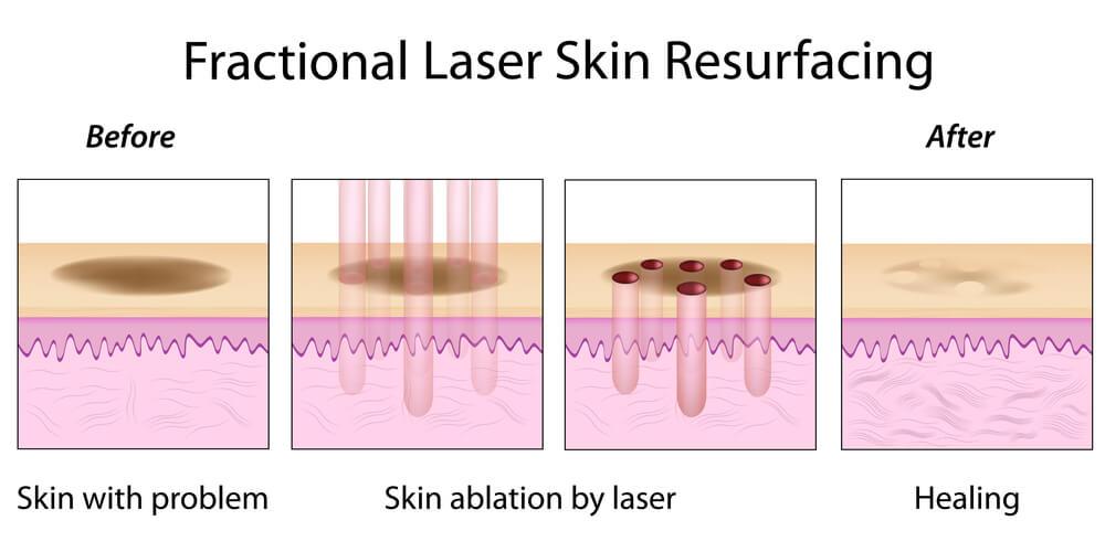 fractional laser