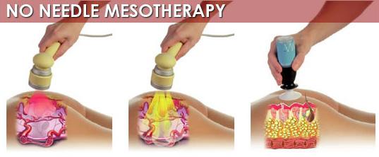 transdermal mesotherapy
