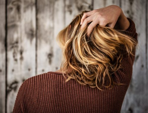 Everything You Need To Know Before Getting A Hair Loss Treatment
